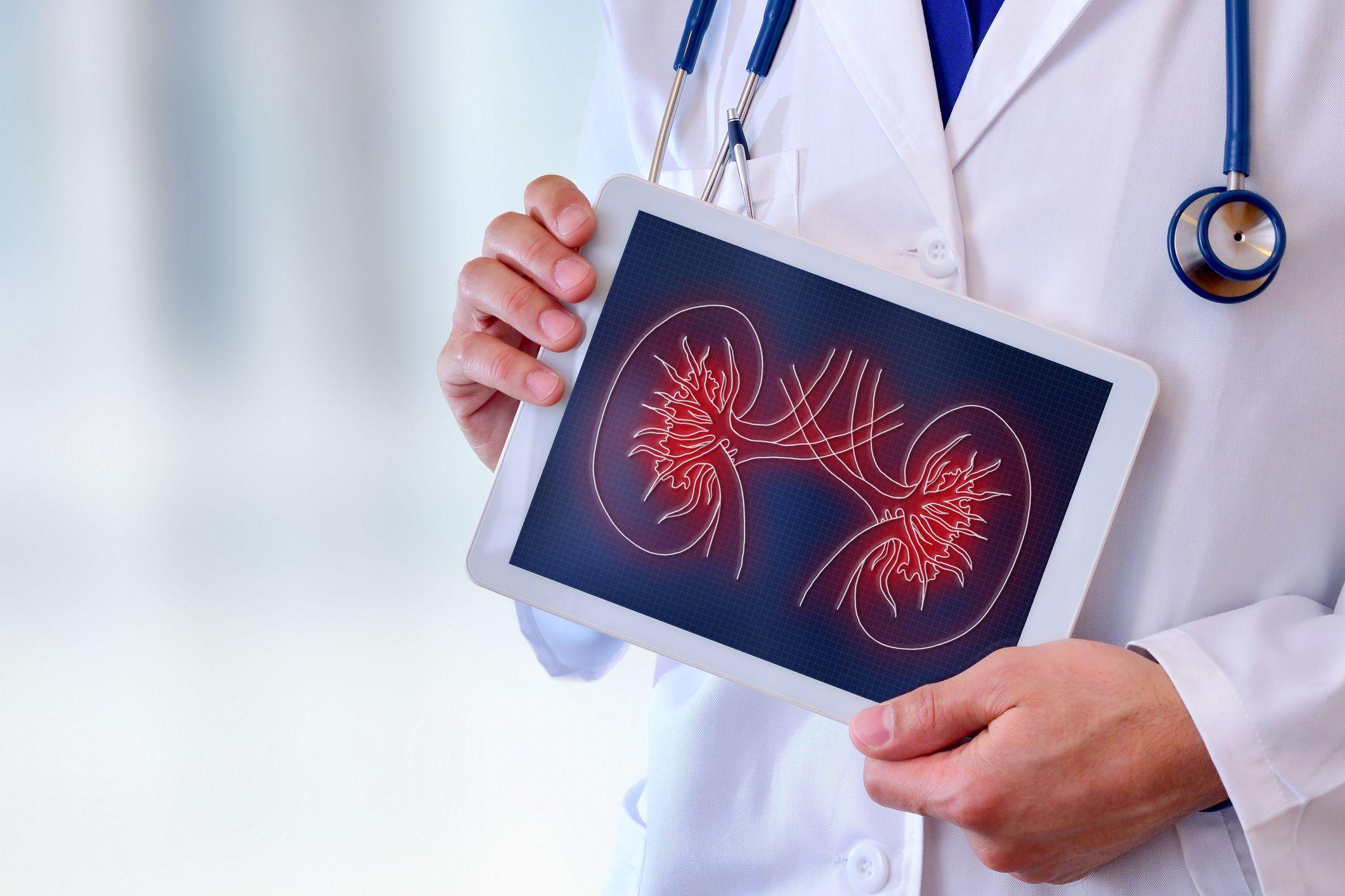 médico de rins